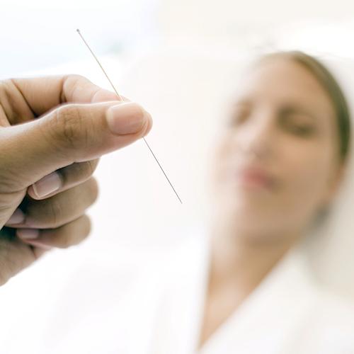 Akupunkturnål med kvinne i bakgrunnen