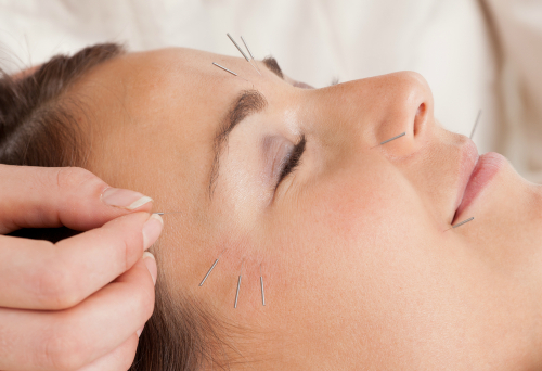 Kvinne får akupunktur i ansiktet