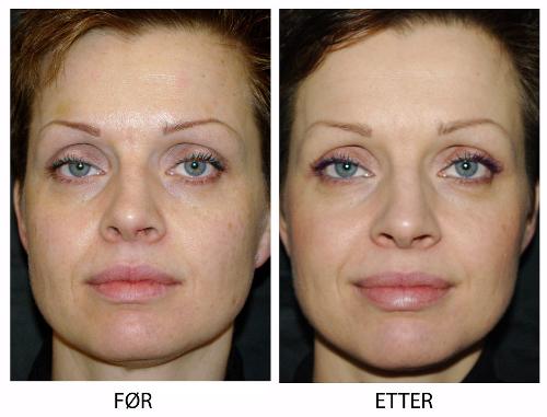 Før og etter behandling bilder av samme kvinneansikt
