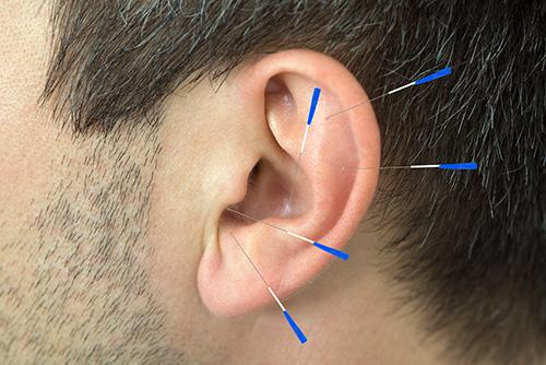 øreakupunktur . 5 nåler stukket i et øre