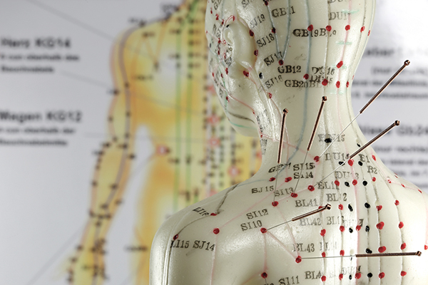 Akupunktur figur som viser akupunkturpunktene