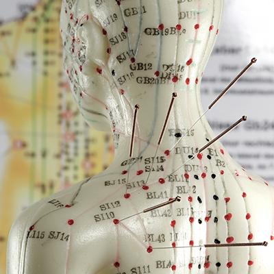 Akupunkturfigur som viser akupunkturpunkter